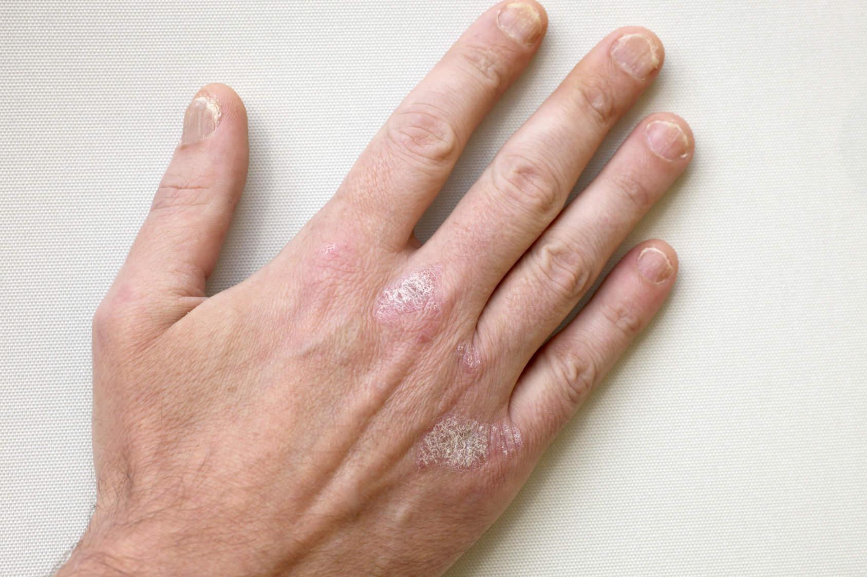 Trapianto della pelle a psoriasi