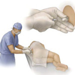 Tumori: terapia mininvasiva